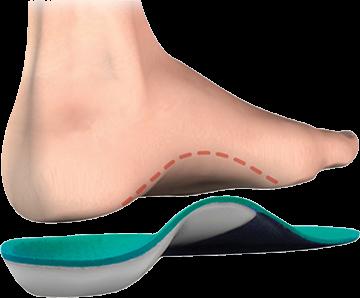 Custom Orthoses