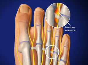 What does a Neuroma look like?