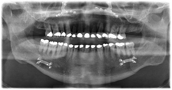 My x-ray the next day. You can see four plates, two below my teeth and two near my nose, and various screws. The wires around my upper teeth are to keep the splint in place.