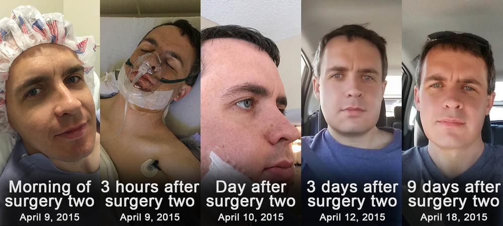 Second Surgery Recovery Day 10: Jaw surgery before and after ...