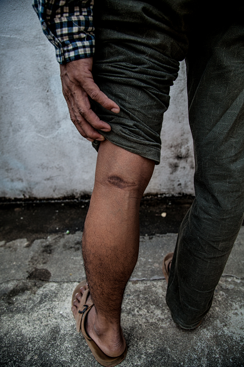 Bangkok, Thailand, Feb.5, 2017. Lô Mô y Hoa, a Montagnard who claims he was shot by the Vietnamese police. He now lives stateless in Bangkok.