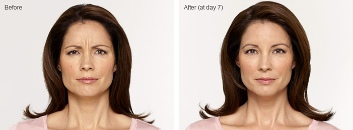 Before and After Botox in Brandon, Fl