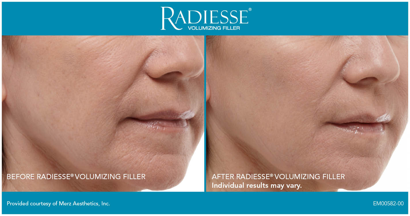 Treating anti-aging with Blue Peel Radiesse at Florida Aesthetics and Medical Weight Loss in Brandon, Fl
