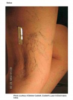 Leg veins picture before laser vein treatment at Florida Aesthetics and Medical Weight Loss in Brandon, FL