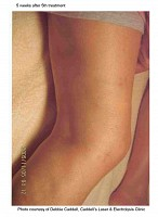 Leg picture after laser vein treatment at Florida Aesthetics and Medical Weight Loss in Brandon, Fl