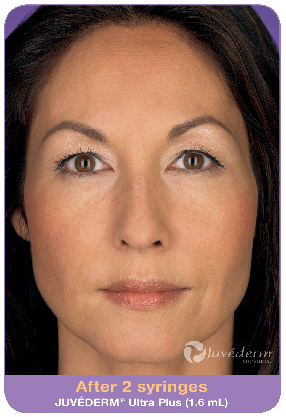 Juvederm treatment at Florida Aesthetics and Medical Weight Loss in Brandon, Fl