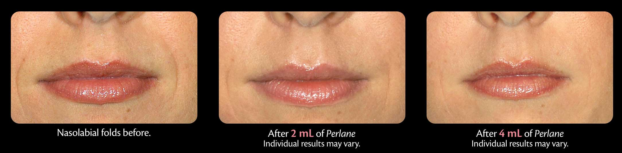 Perlane medical skin products at Florida Aesthetics and Medical Weight Loss in Brandon, Fl