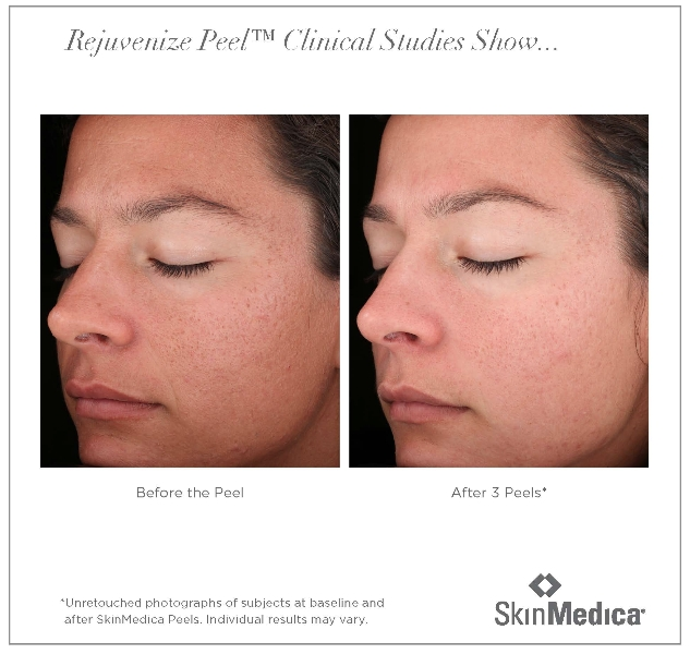 SkinMedica Rejuvvinize medical skincare product at Florida Aesthetics and Medical Weight Loss in Brandon, Fl
