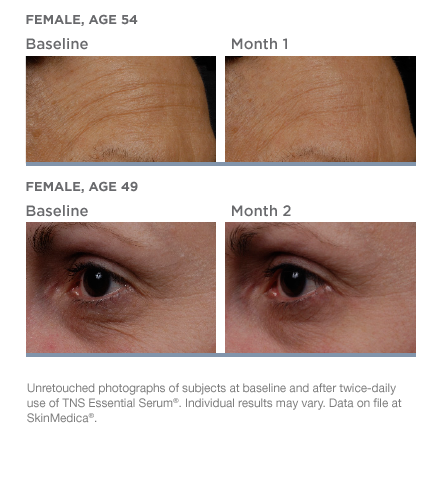 SkinMedica TNS Essential medical skincare product at Florida Aesthetics and Medical Weight Loss in Brandon, Fl