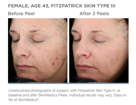 SkinMedica Vitalize Peel medical skincare product at Florida Aesthetics and Medical Weight Loss in Brandon, Fl