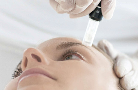Microneedling treatment at Florida Aesthetics and Medical Weight Loss in Brandon, FL