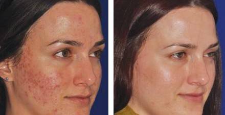 Micro needling skin rejuvenation treatment at Florida Aesthetics and Medical Weight Loss in Brandon, FL