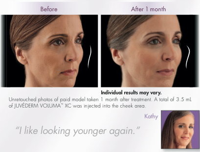 Voluma filler treatment at Florida Aesthetics and Medical Weight Loss in Brandon, FL