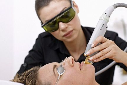 A woman getting skin laser treatment in Brandon, Fl