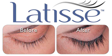 LATISSE at Florida Aesthetics and Medical Weight Loss in Tampa and Brandon, FL