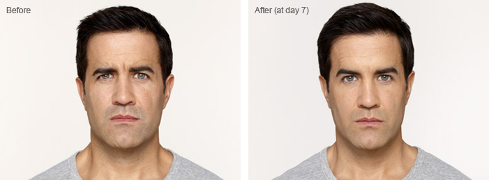Botox for men at Florida Aesthetics and Medical Weight Loss in Tampa and Brandon, FL