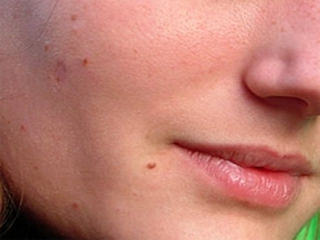Skin tag treatments at Florida Aesthetics and Medical Weight Loss in Tampa and Brandon, FL