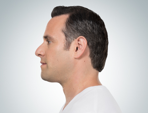 Kybella double chin treatment at Florida Aesthetics and Medical Weight Loss in Tampa and Brandon, FL