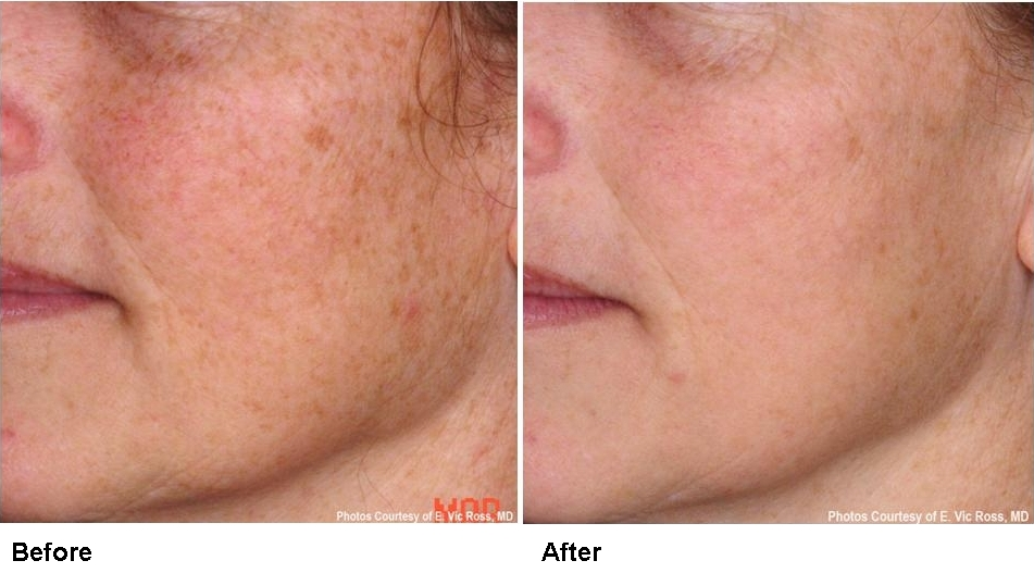Pearl Laser Skin Resurfacing Treatment at Florida Aesthetics and Medical Weight Loss in Tampa and Brandon, FL