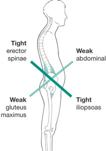 lower body cross syndrome.jpg