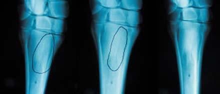 X-Ray%20Blue%20lr.jpg