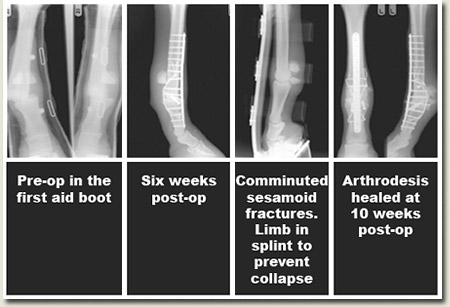 fetlock arthrodesis