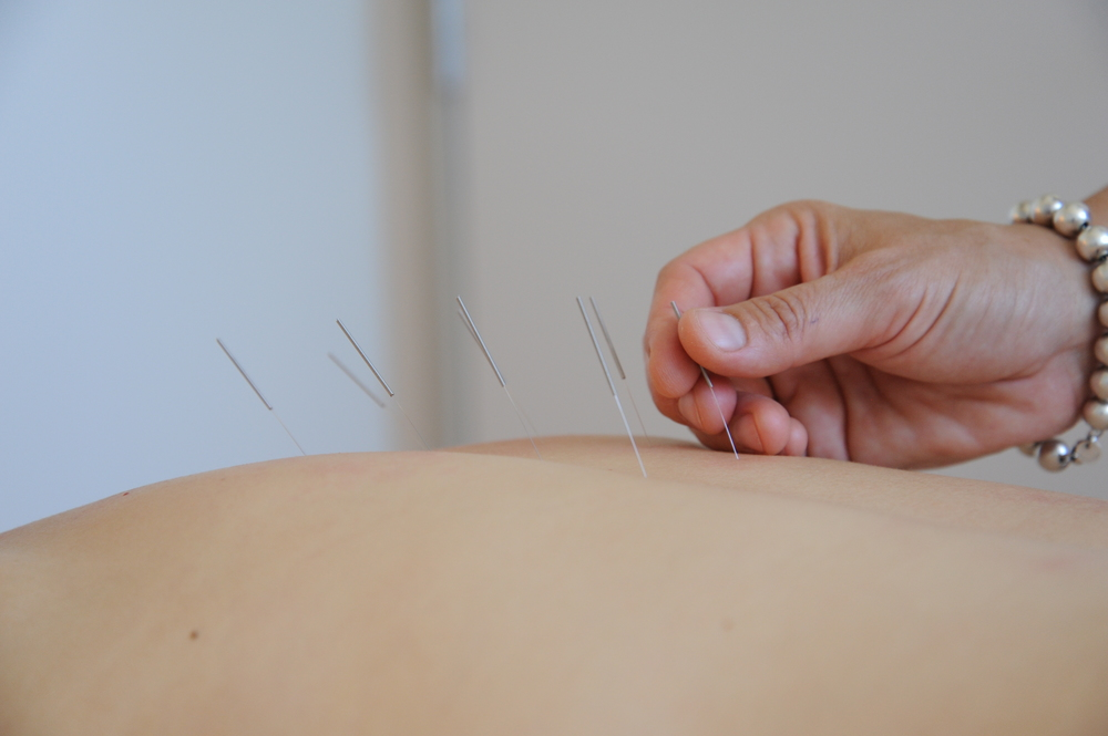 Painless Acupuncture; Photo By Dave Clark, all rights reserved.