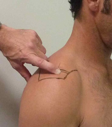 Demonstrating the position of the acromio-clavicular joint. Palpation of this joint is important in assessment of possible shoulder dislocations.