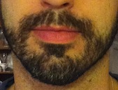 Beard_Pic