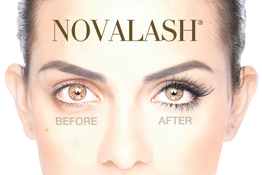 novalash-before-after-900x600.jpg
