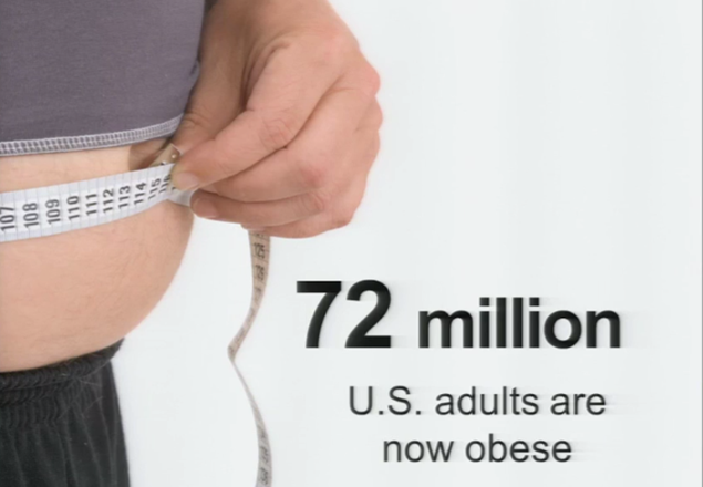 72 million obese.png