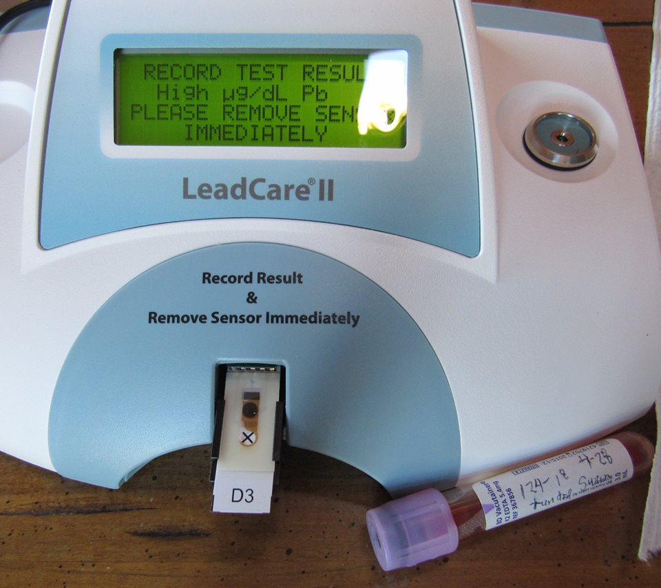 The Tundra Swan #124-18 has very high levels of lead poisoning. Above 65 is the highest our analyser reads.
