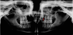 X-ray evidence of skull from Norwich (possibly Talbot) with congenital missing tooth