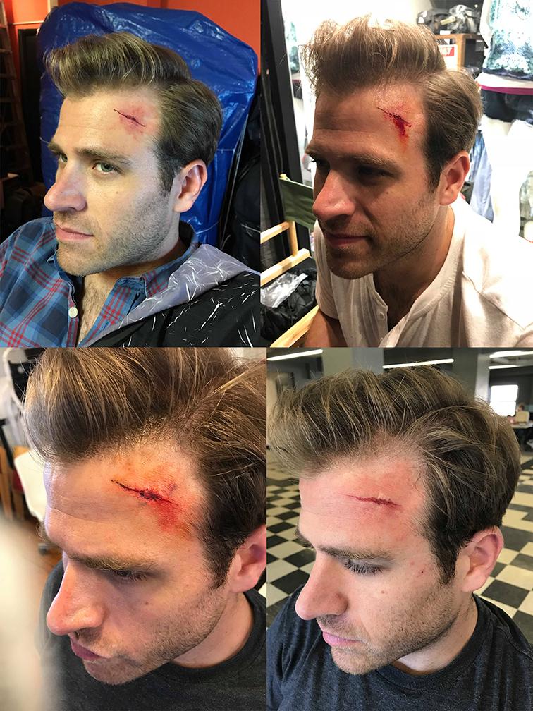 Forehead Cut