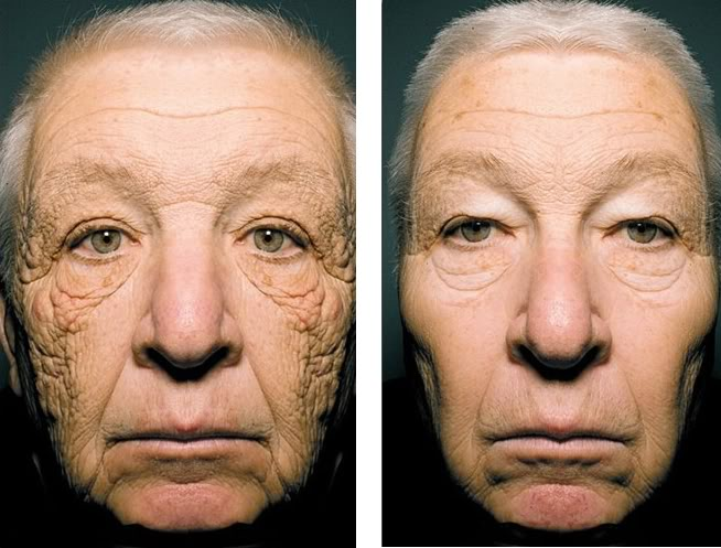 Accept it. This is what tanning does to your face ...