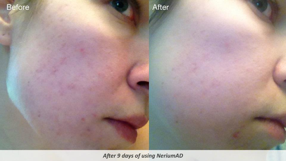 Nerium: The Poisonous Plant Turned Into A Poisonous Multi-Level Marketing Company etherealauraspa.com/blog