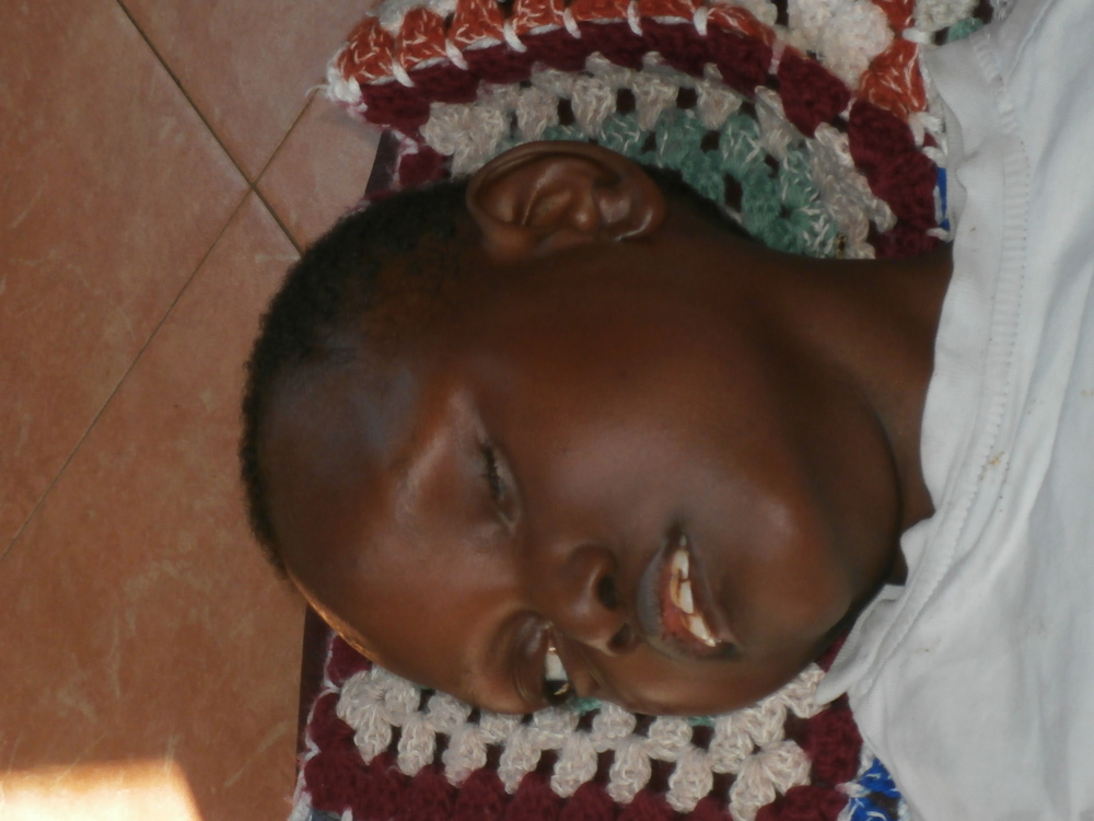 Light in Africa out-reach medical dispensary was able to save the life of this child before his father abandoned him in the bush and walked away due to his disability of Ceribal Palsy