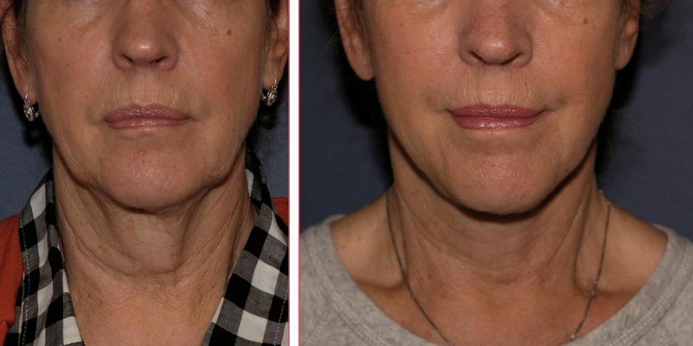 Laser Facelift sample 1.jpg