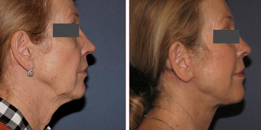 Laser Facelift sample 2.jpg