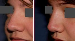 Nasal Bridge Liquid Rhinoplasty - Quick and Simple