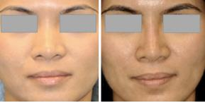 Nasal Bridge and Tip Liquid Rhinoplasty - Quick and Simple