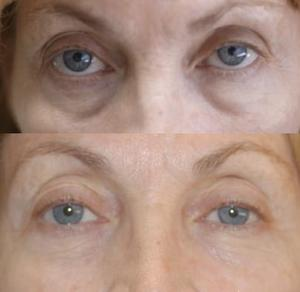 Belotero Under-Eye Tear Troughs and Bags Smoothed