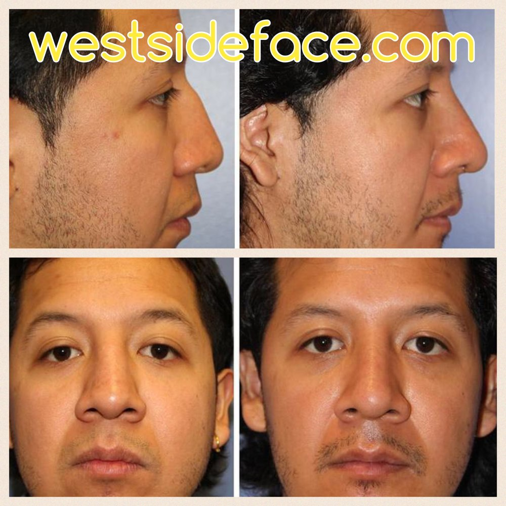 Correction of bump on bridge and correction of crooked nose