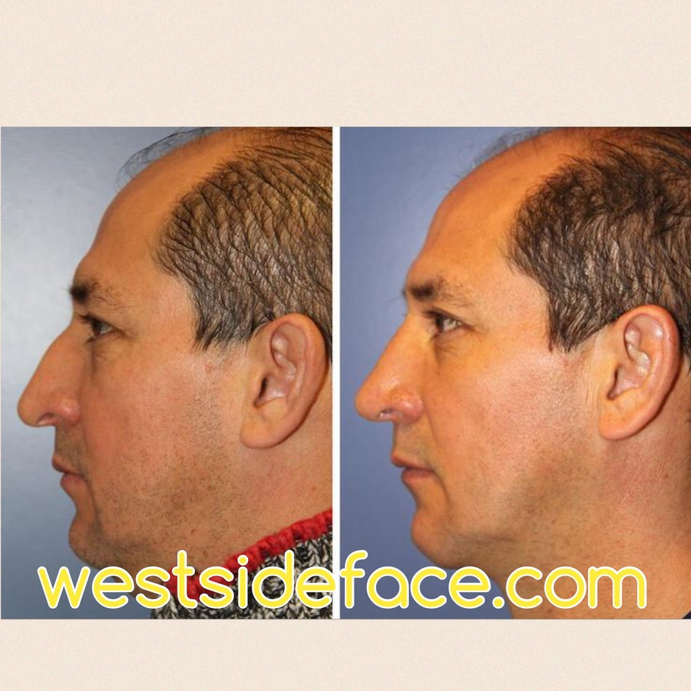 Correction of droopy tip and correction of bump on bridge