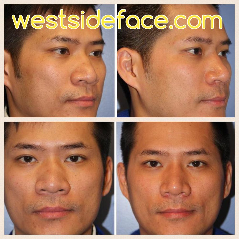 Ethnic Asian rhinoplasty with augmentation of bridge, definition of tip, and narrowing of nostrils.