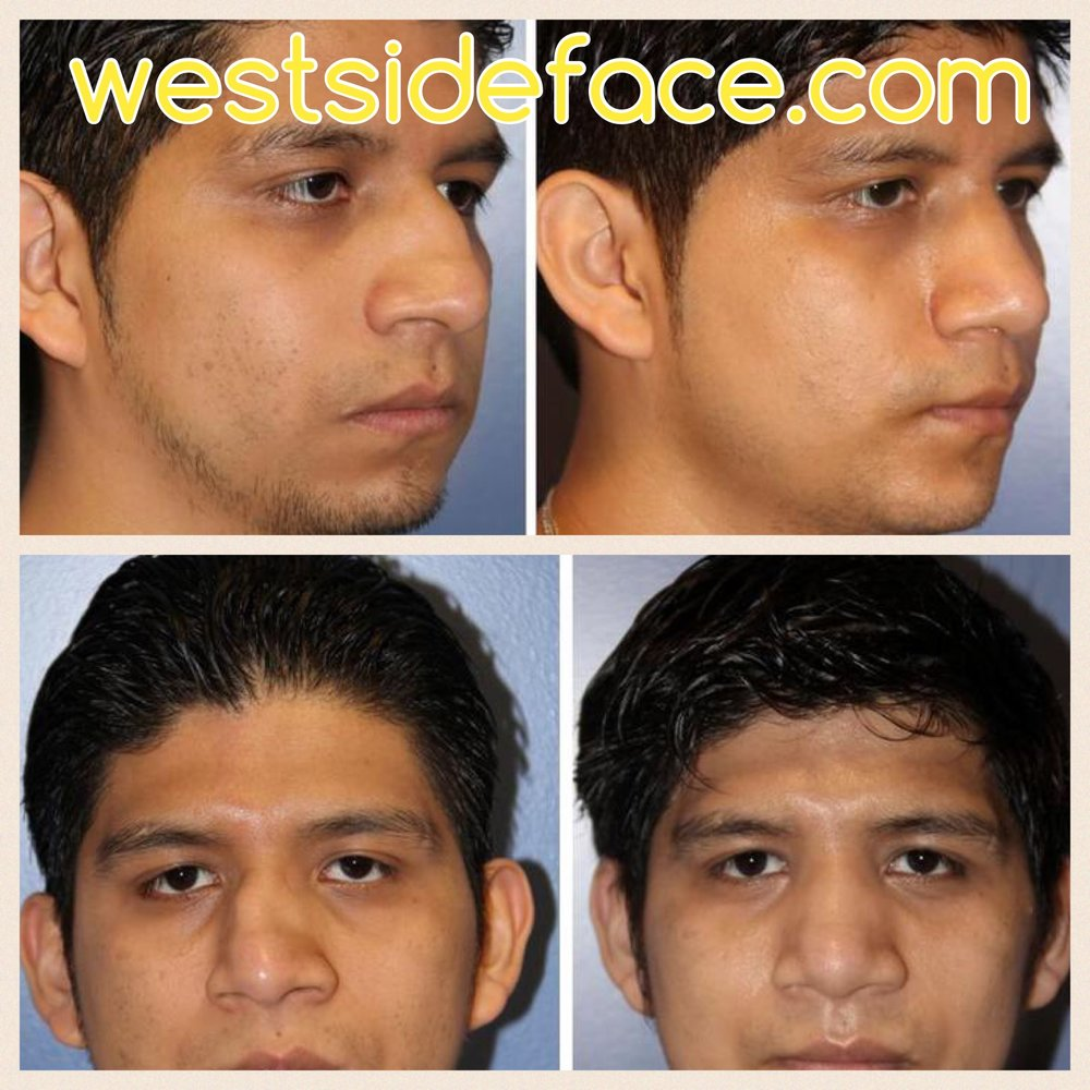 Correction of severely crooked nose
