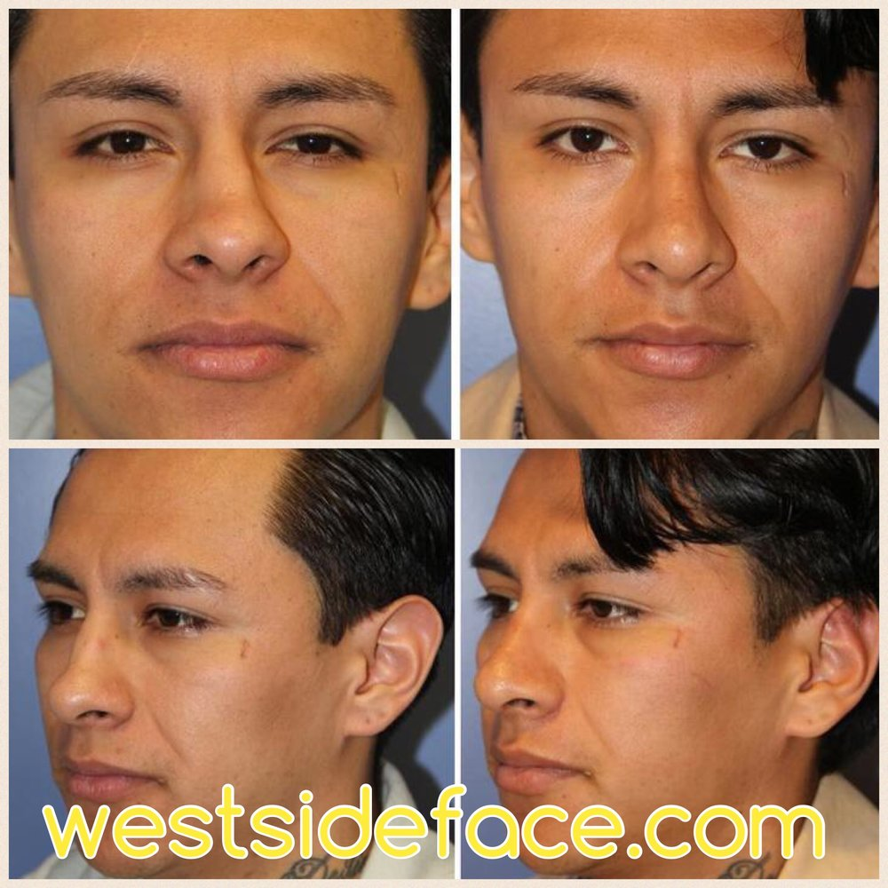 Correction of crooked nose. Improved definition of tip.