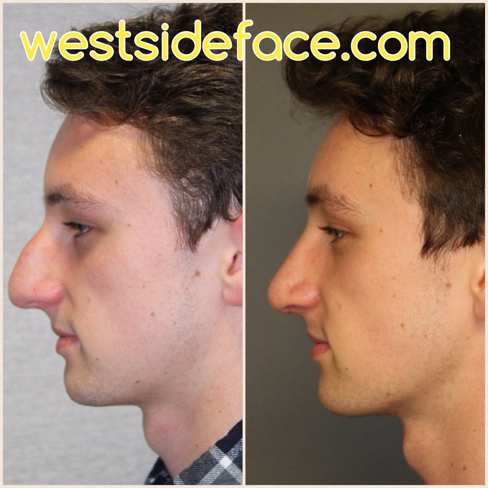 Correction of large hump, and setting back tip closer to face. Correction of droopy tip and improved definition of tip.