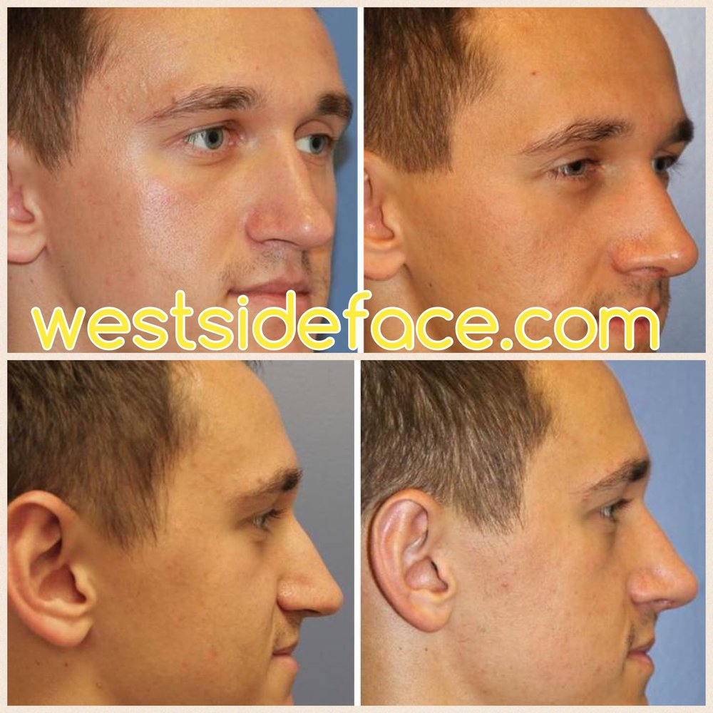 Subtle and natural improvement in tip definition and correction of droopy tip.