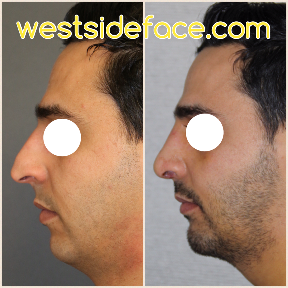 Size medium chin implant. Correction of sere tip droop and hump on bridge. Setting tip closer to face to achieve natural facial balance.